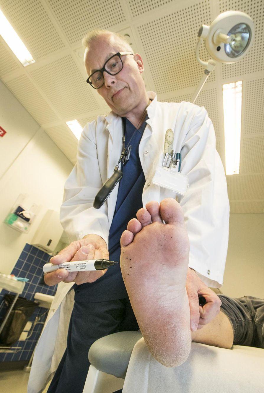 Kovettuma jalan ulkosyrjän ihossa paljastaa kävelyhäiriön, Tero Klemola kertoo.