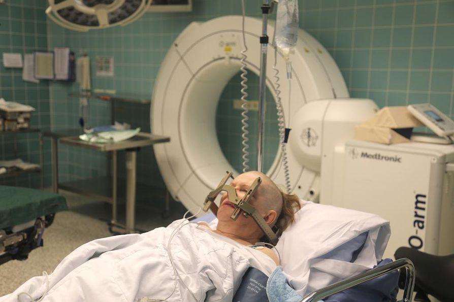 Leena Siljander juuri ennen leikkausta hiukset ajeltuina ja leikkauksessa tarvittava raami päähän kiinnitettynä.