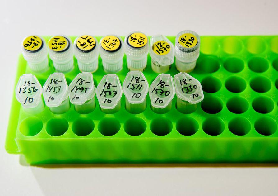 Dna-tutkimukset ovat jo arkipäivää esimerkiksi harvinaisten perinnöllisten sairauksien diagnosoinnissa.