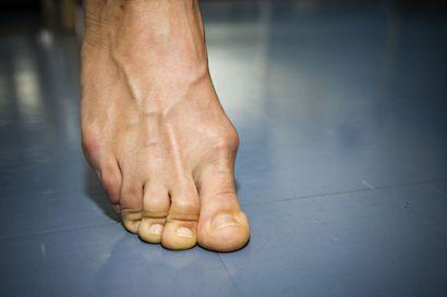 Jalkojen rasituskipu voi kehittyä salakavalasti vaivaisenluuksi – Huonojen kenkävalintojen lisäksi perintötekijät vaikuttavat vaivan kehittymiseen