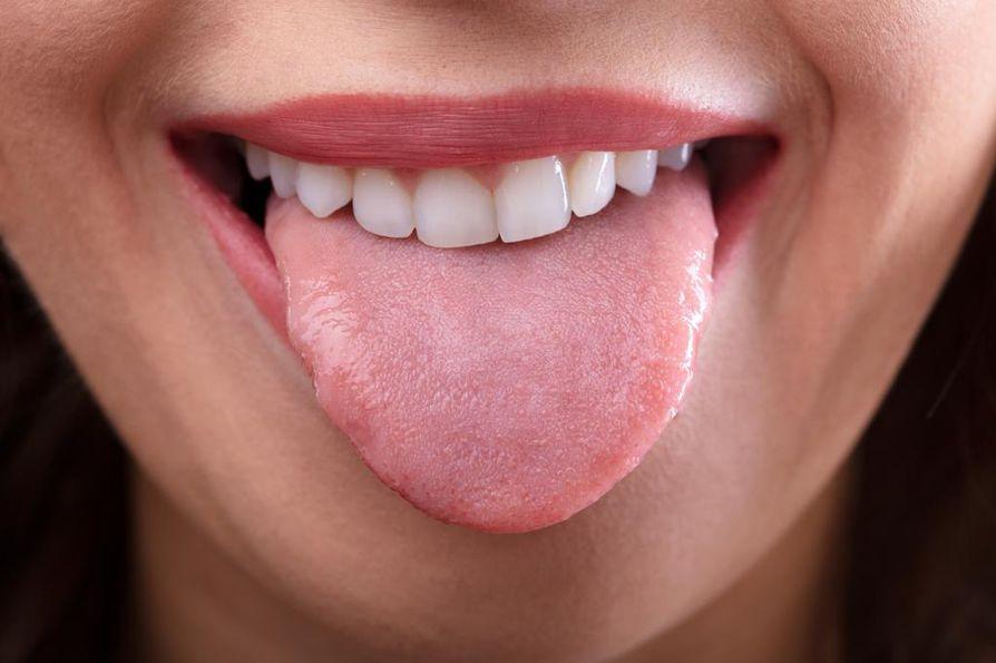 Normaali, terve kieli on pinnaltaan tasainen ja vaaleanpunainen. Kuvan kielen reunassa on lievää piparkakkumaisuutta.