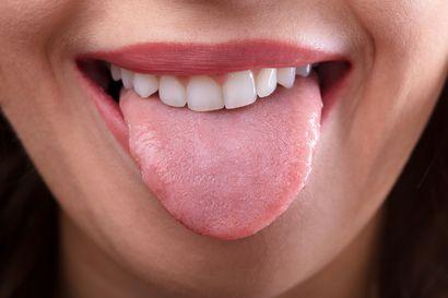 Tunnistatko piparkakkukielen tai karttakielen? Muutokset kielessä voivat olla merkki syövästä tai raudanpuutteesta