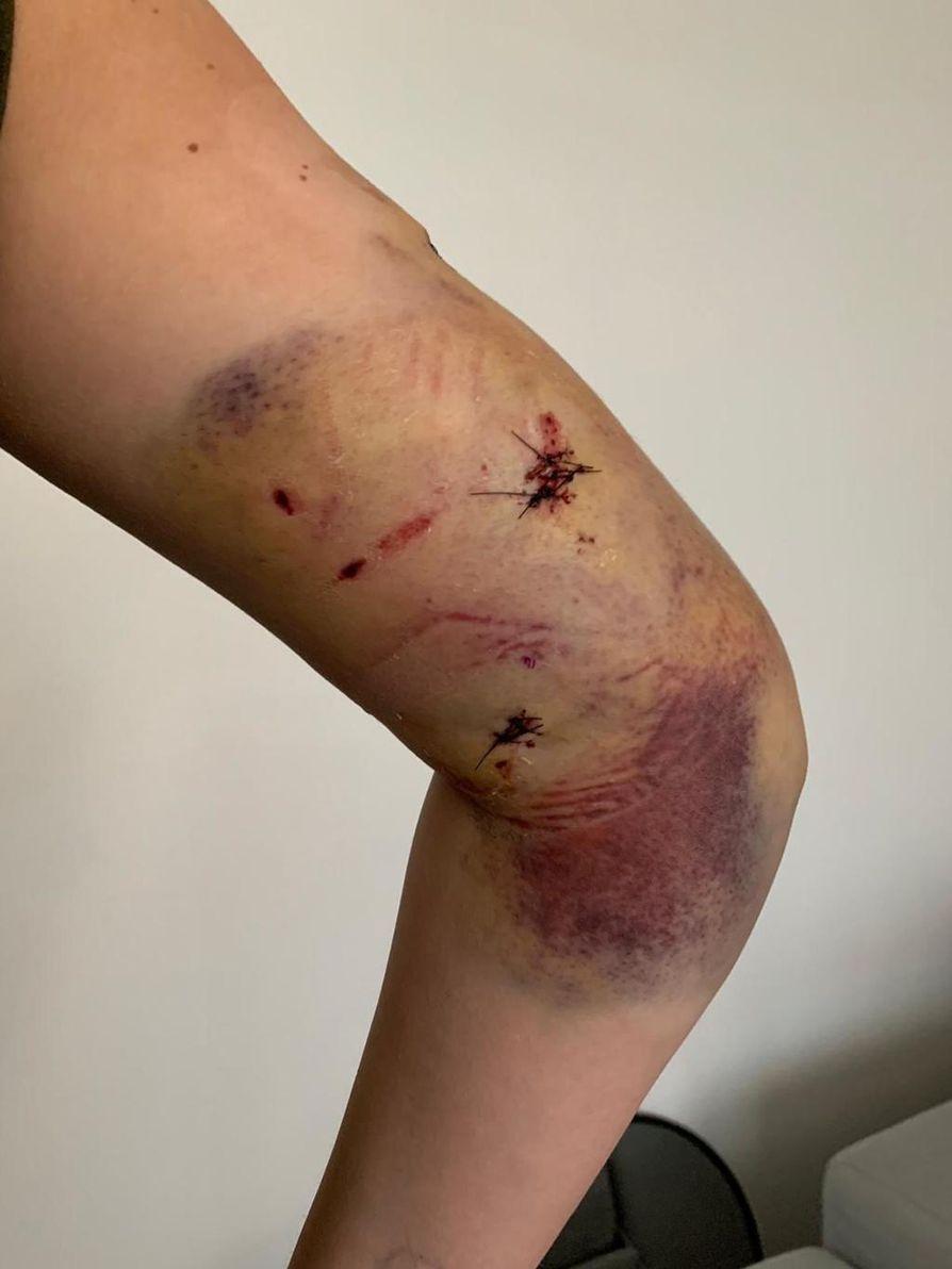 Sofia Partasen käsi näytti sairaalareissun jälkeen tältä. Juuri onnettomuuden jälkeen otetut kuvat ovat liian järkyttäviä lehdessä julkaistavaksi.
