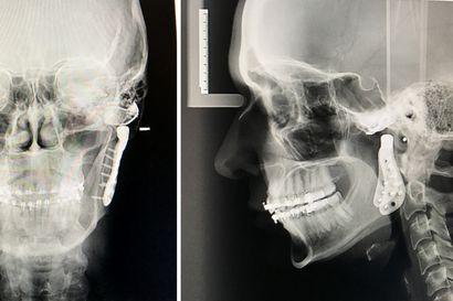 Uusi leukanivel mittatilauksena – Jenni Ruotsi sai proteesit pari vuosikymmentä jatkuneiden purentakipujen jälkeen, kun muuta vaihtoehtoa ei enää ollut