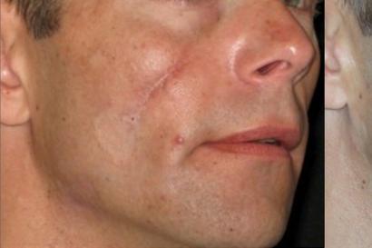 Vältä ihon ennenaikainen ikääntyminen