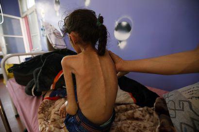 Pääkirjoitus: Iso nälkä liikkeellä – pandemian pahentamaa nälänhätää pitäisi päästä helpottamaan