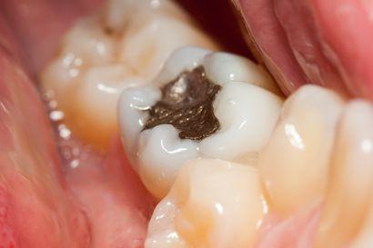 Apua, hampaasta lohkesi palanen taas! – Muovipaikka ei aina ole kestävin korjaus, mutta moni ei tiedä vaihtoehdoista