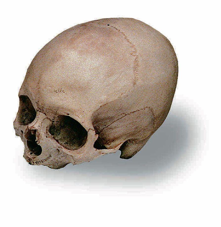 Ihmisen aivot ovat kutistuneet 20 000 vuodessa. Tutkijat arvioivat sen olevan seurausta aggressiivisuuden vähenemisestä.