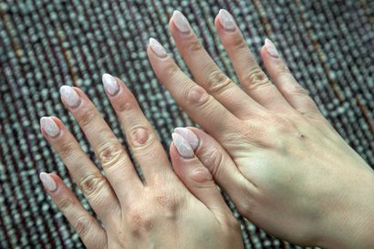 32-vuotias Hanna on purrut ja nyppinyt käsiään lapsesta asti niin, että niissä on paksut arpikudokset – pakko-oireinen ihon repiminen kertoo mielen kuormituksesta