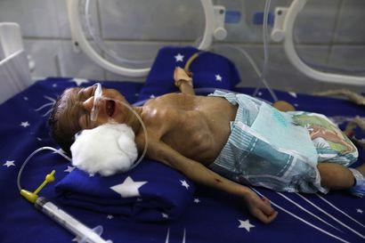 Koronan seuraukset ovat lapsille vakavammat kuin tauti itse – Unicefin mukaan vakava aliravitsemus lisääntyy huimasti