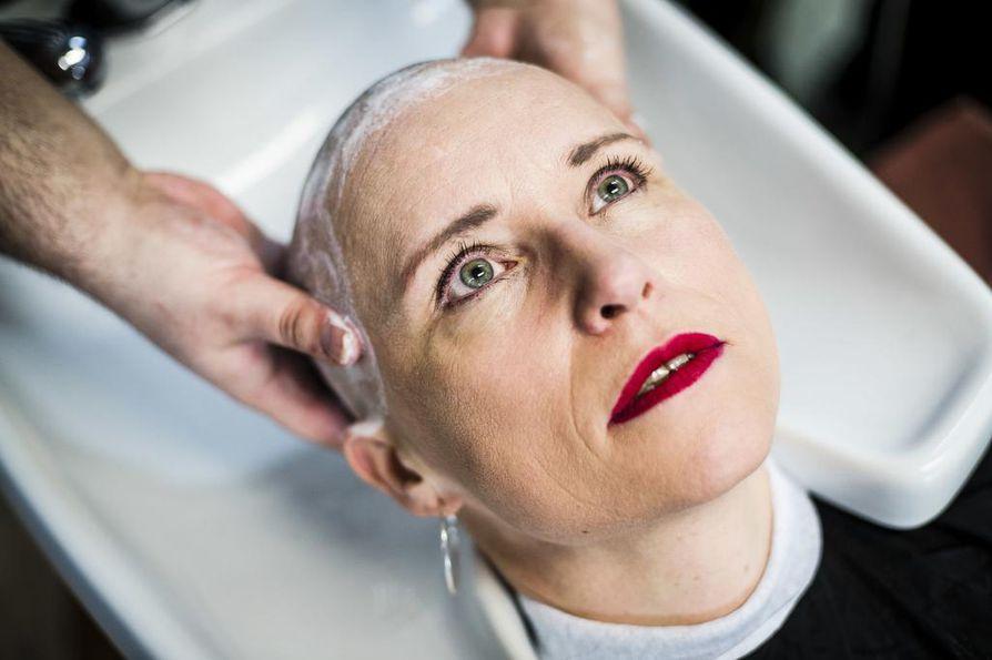 Hiuksista luopuminen tekee syövän näkyväksi. Alakulppi ei koe tarvitsevansa peruukkia. Miksi sairaus ei saisi näkyä?