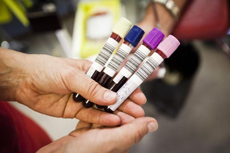 Tutkimuksessa etsittiin noin 44 000 eurooppalaisen verestä elinajanodotteeseen liittyviä merkkiaineita.