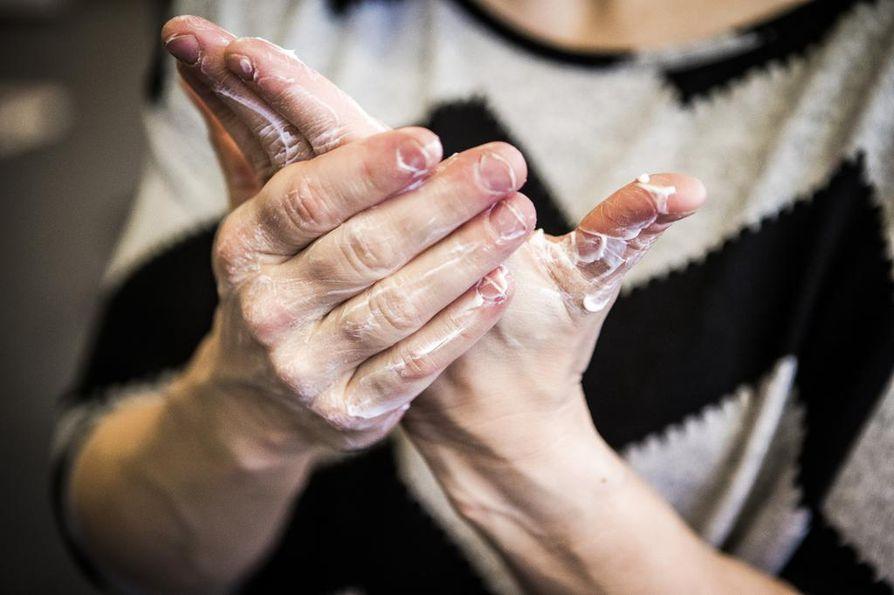 Talvikuivat kädet kiristävät, hilseilevät ja halkeilevat. Käsiä kannattaa rasvata useita kertoja päivässä, jos mahdollista. Ulkona paras pakkassuoja ovat hansikkaat.