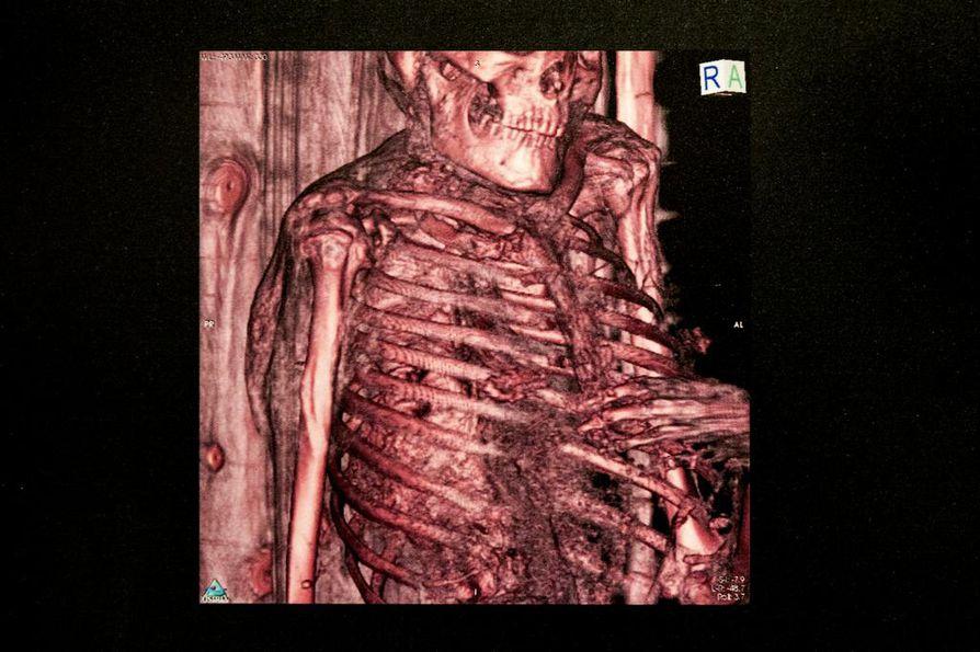 Rungiuksen tietokonetomografiakuvassa niin kutsutut miestissit erottuvat kohoumina rintakehässä.