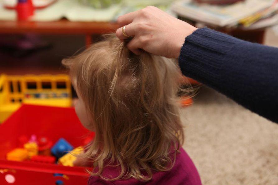 Tukistaminen on yleisin kuritusväkivallan muoto. Lisäksi lasta saatetaan läimäyttää, nipistää ja piiskata.
