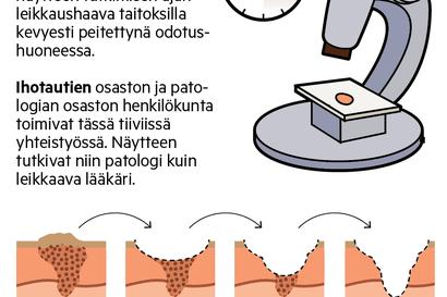 Ihosyöpien hoito Lapissa maan huipputasoa – Tarve on suuri, sillä ihosyöpä on yksi nopeimmin yleistyvistä syövistämme